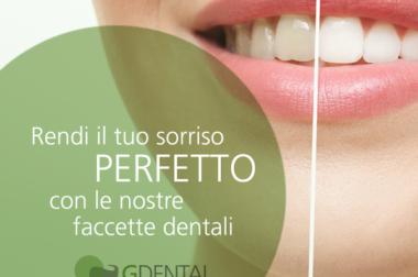 Se vuoi avere un sorriso perfetto, le faccette dentali potrebbero essere il rimedio giusto per te